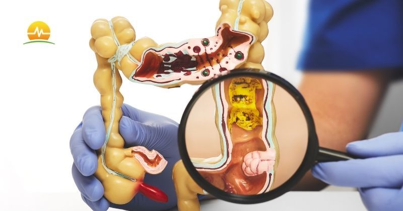 Doctor in blue scrubs magnifies colorectal health issues on model colon showing conditions that can be diagnosed during a colonoscopy. Memorial Advanced Surgery logo at top left.