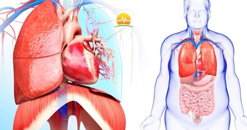 Medical illustration of obese man with close up view of heart and chest anatomy where obesity can increase risk of cardiovascular conditions like Afib. Memorial Advanced Surgery logo at top center.